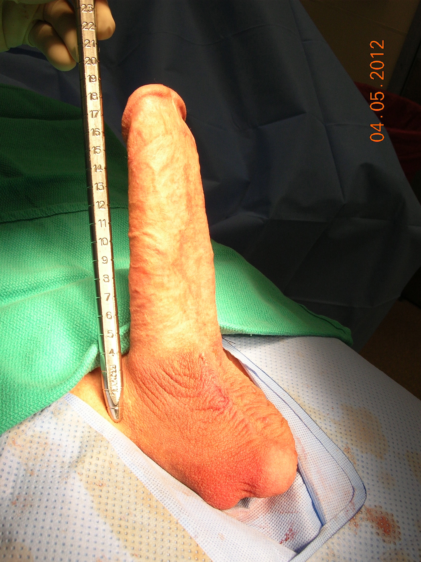 Maximum Penile Length & Girth by Dr. Garber