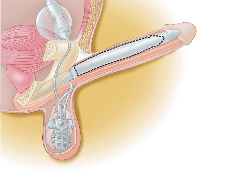 Other Types of Penile Implants by Dr. Garber