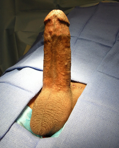 Impotence Penile Implant Example 5b