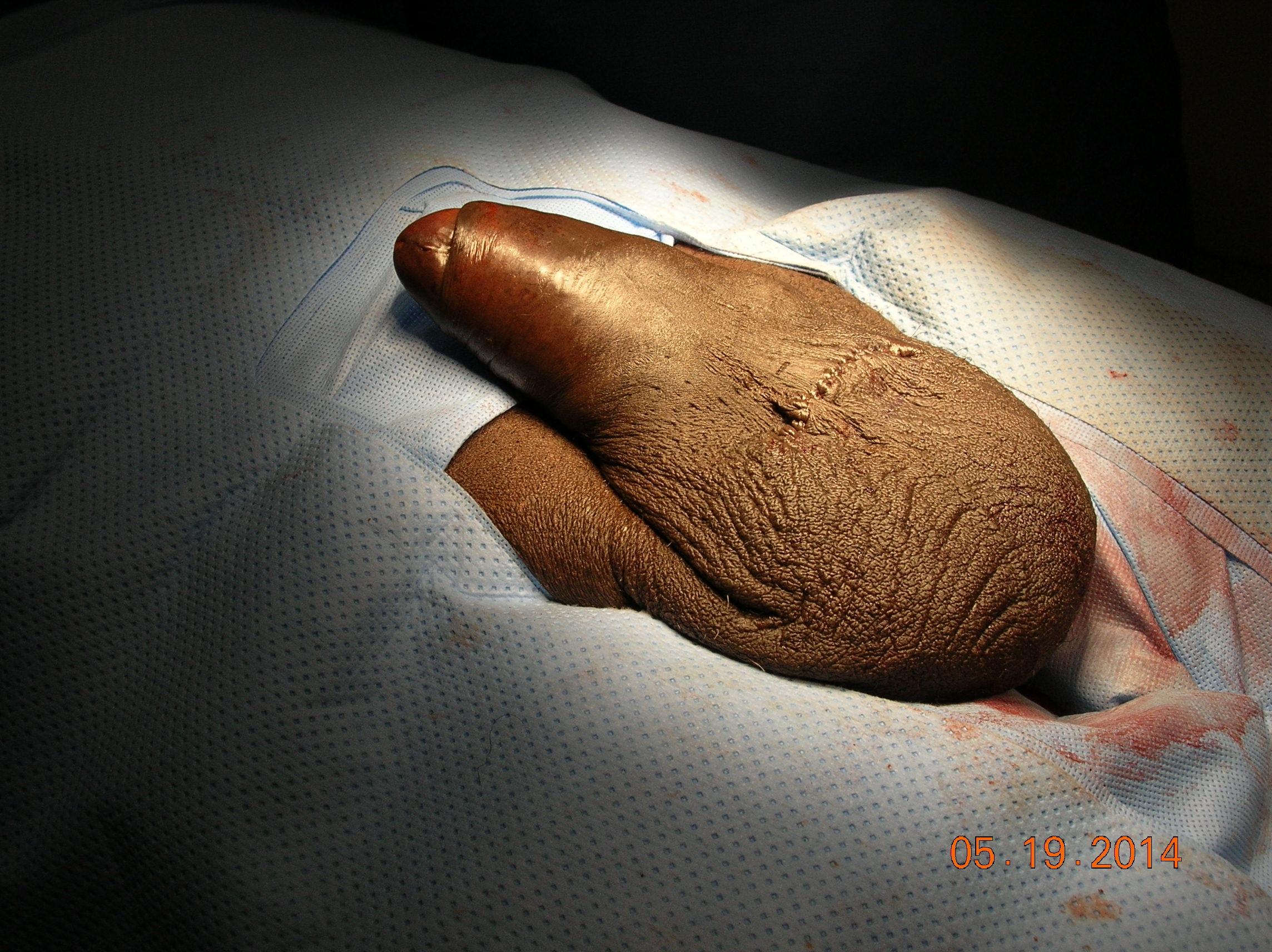 Pic of man having penis enlarged