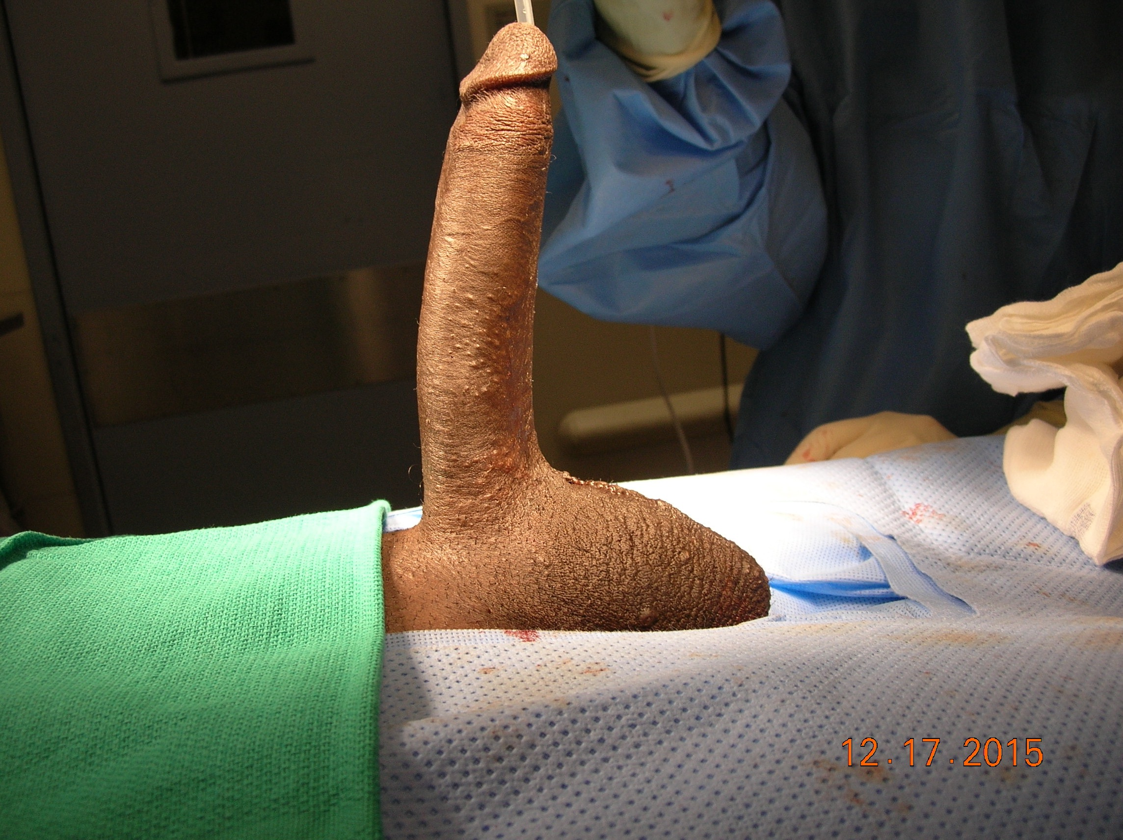 Penis enlargement tubes